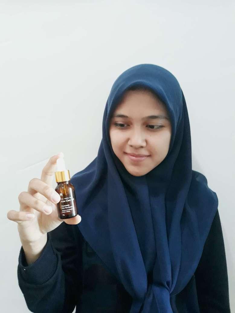 Testimoni You Need Me Acne care gel Serum Penghilang Jerawat Paling Ampuh